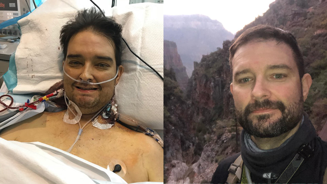 Post–Liver Transplant, I'm Running Marathons and Climbing Mountains on a Plant-Based Diet