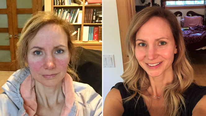 A Healthy Vegan Diet Took Me from Rosacea-Prone to Radiant